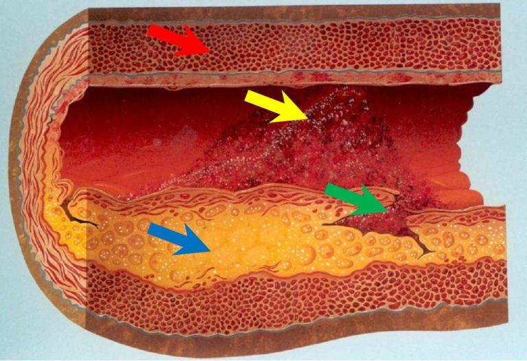 Aterosclerosi, trombosi e malattie cardio-cerebro-vascolari